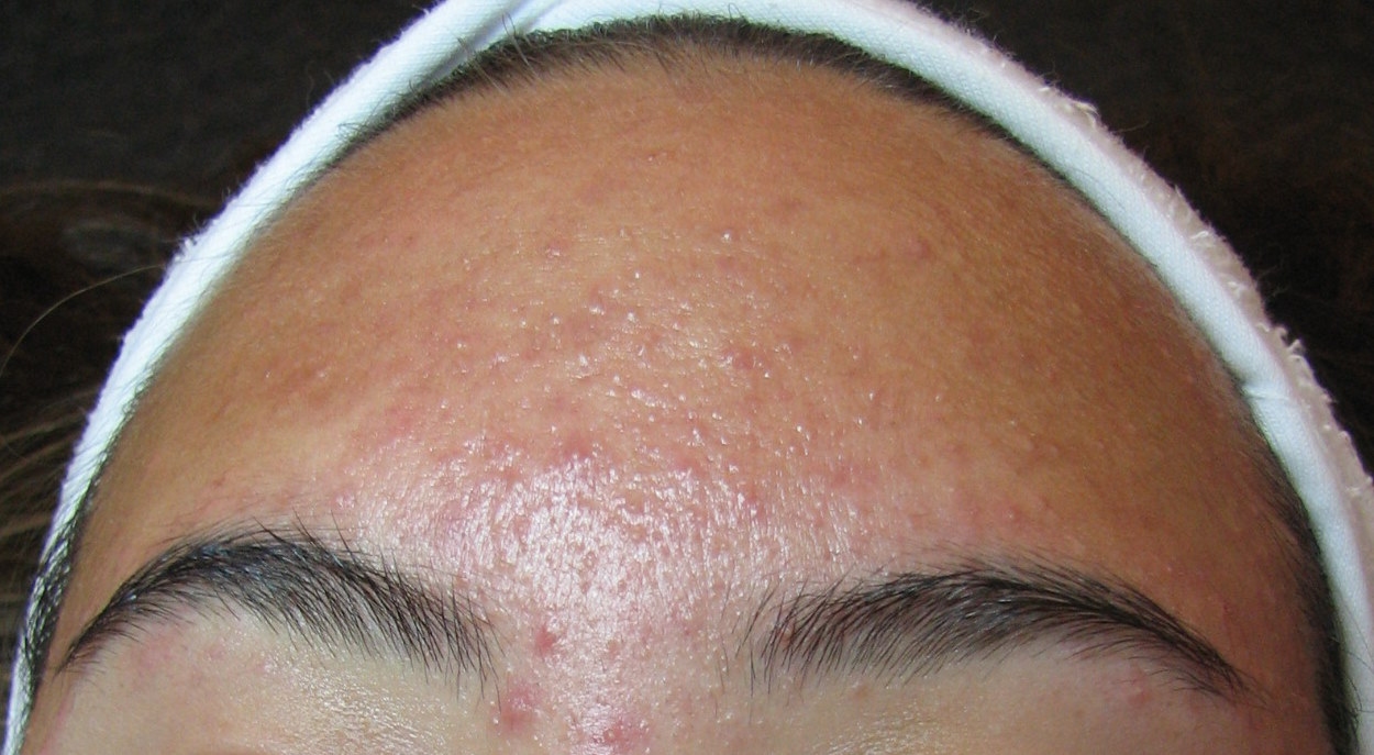 in Causes of adults acne forehead