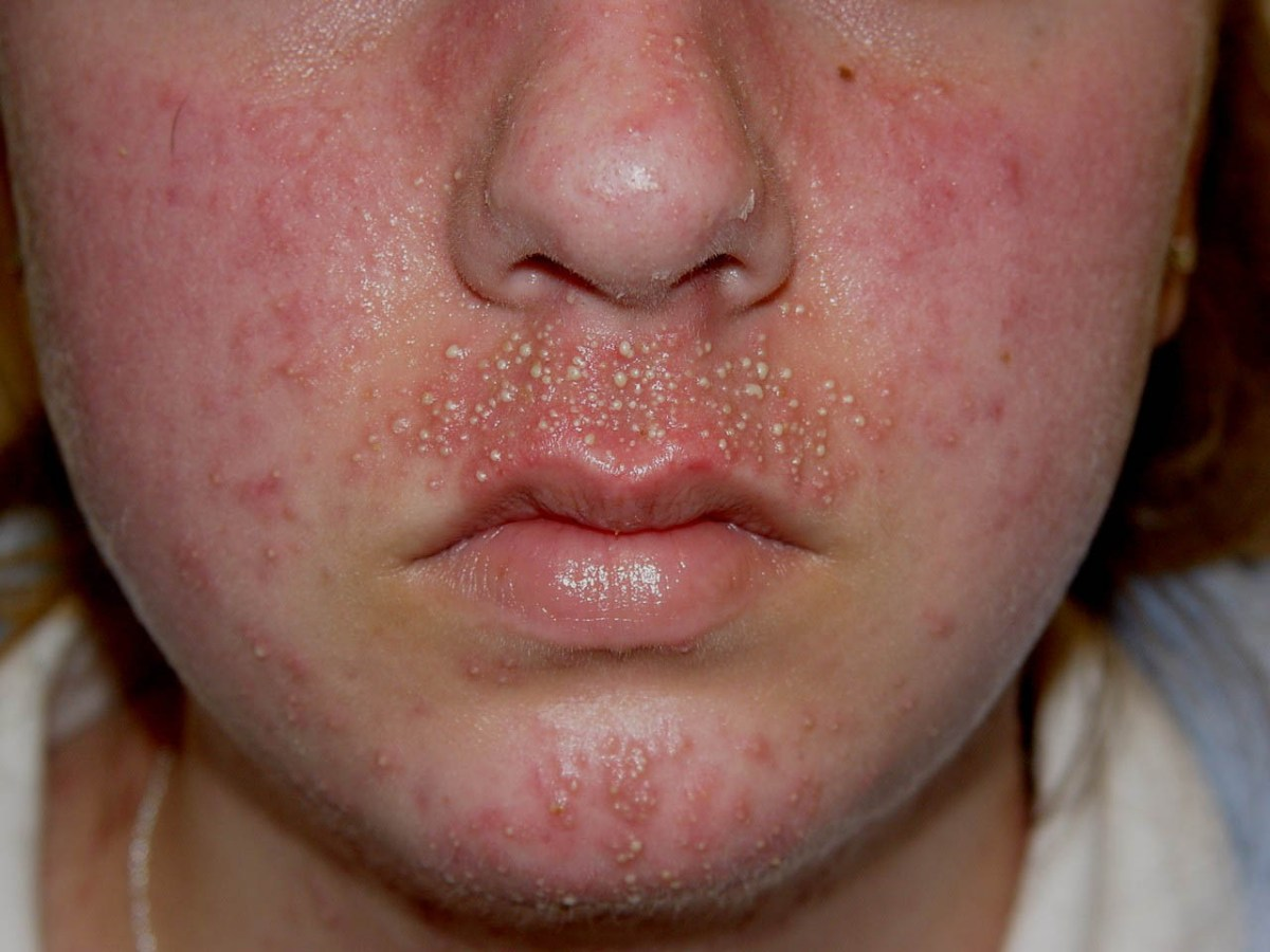 Treatment for Acne Conglobata