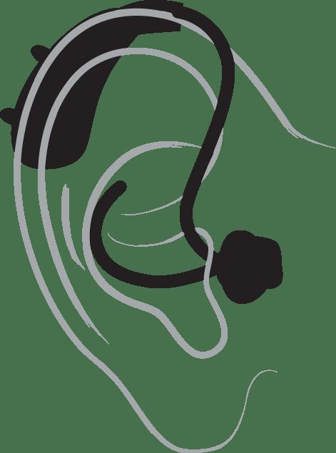 Behind the ear hearing aid diagram