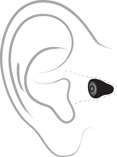 Invisible hearing aid diagram