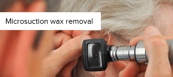 microsuction-wax-removal-promo
