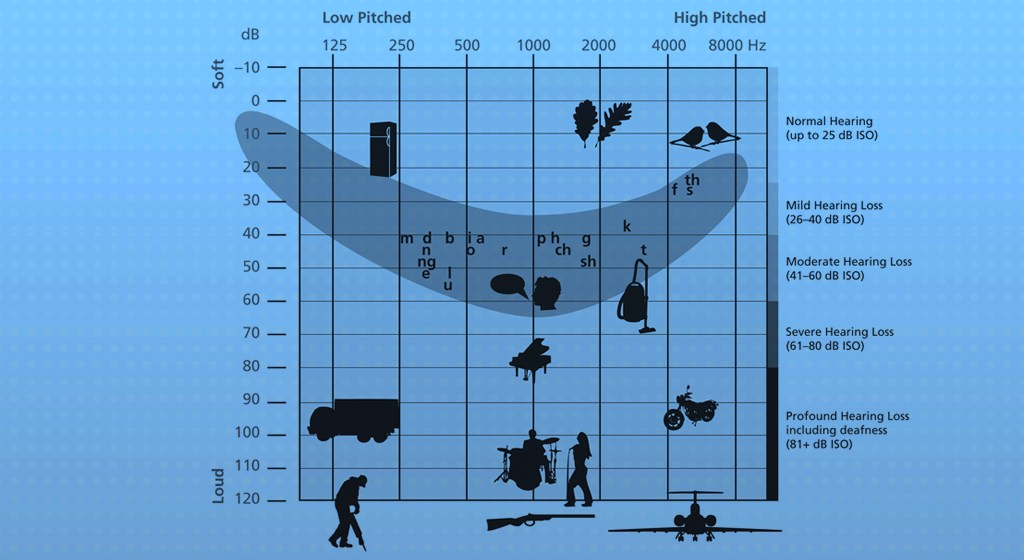 Audiogram with speech banana