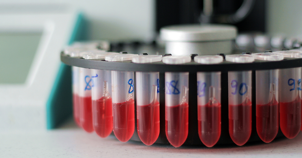 hearing loss blood test