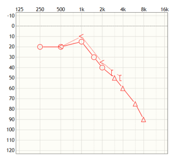 Audiogram of a high frequency hearing loss