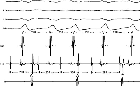 Catheter ablation of bundle branch reentrant ventricular ...