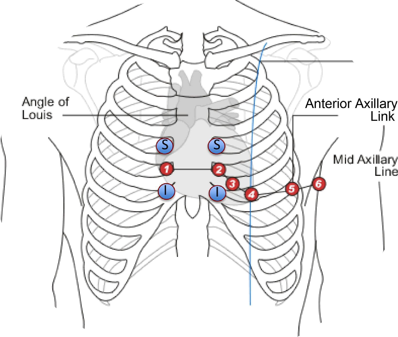 Effect Of Electrocardiographic Lead Placement On Localization Of Outflow Tract Tachycardias
