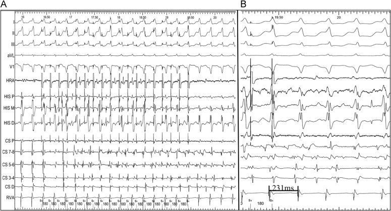 The Simultaneous Presence Of Sustained Atrial Fibrillation