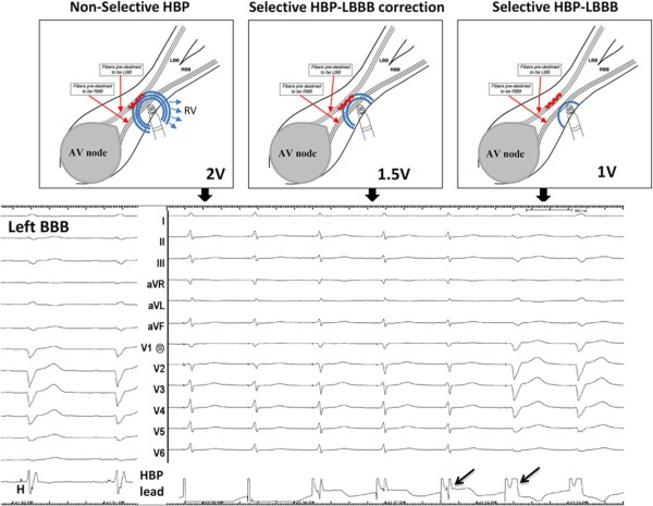 Permanent His-bundle pacing as an alternative to ...
