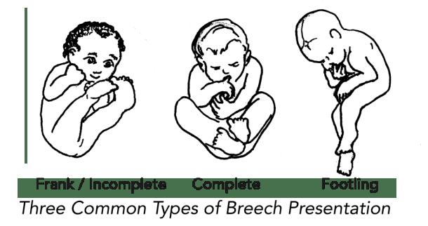 breech positions