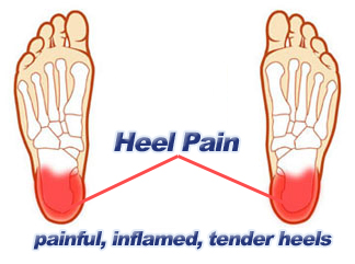 Pain Under The Heel