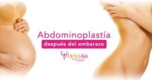 Cirugía Plástica después del embarazo, abdominoplastia. República Dominicana