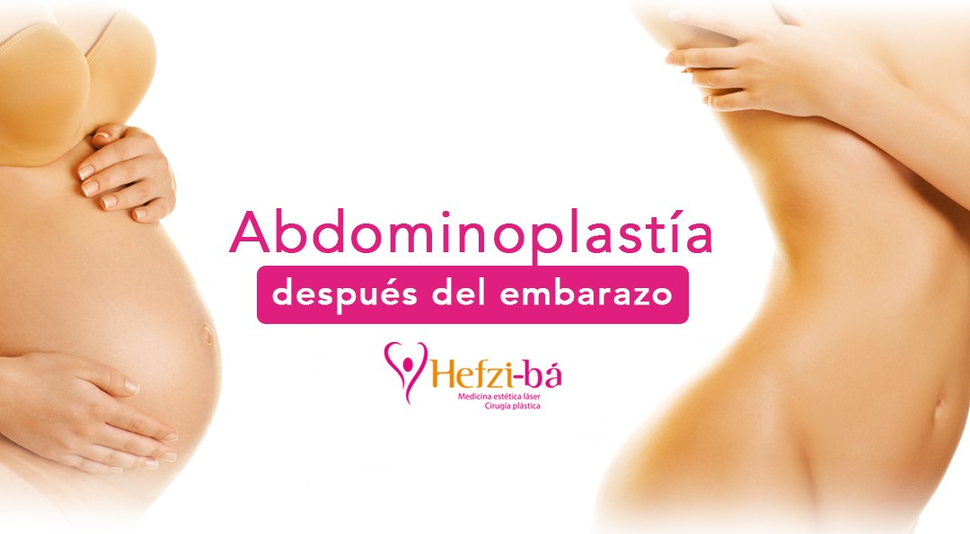 Cirugía plástica después del embarazo: abdominoplastia
