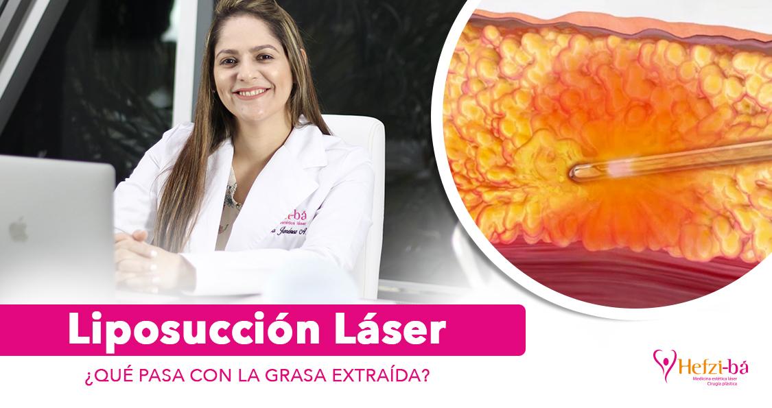 Liposucción Láser ¿qué pasa con la grasa extraída?