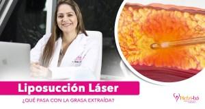 Liposucción Láser