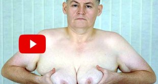 Drinking milk 54-year-old British man feel dramatic changes breasts grows like women 15