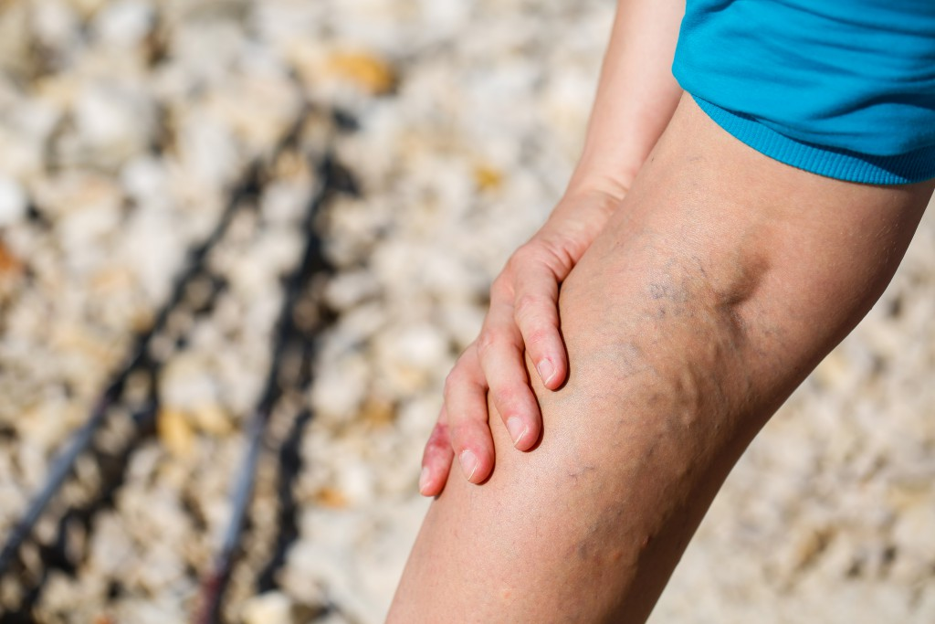 Woman touching painful varicose veins on a leg