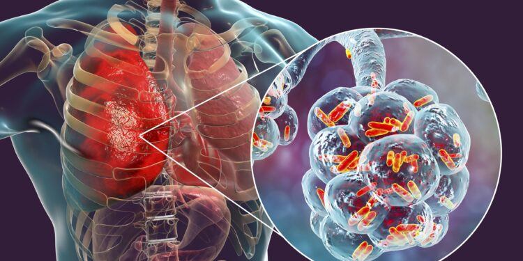 3D illustration of bacterial pneumonia