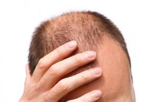 تساقط الشعر عند الرجال