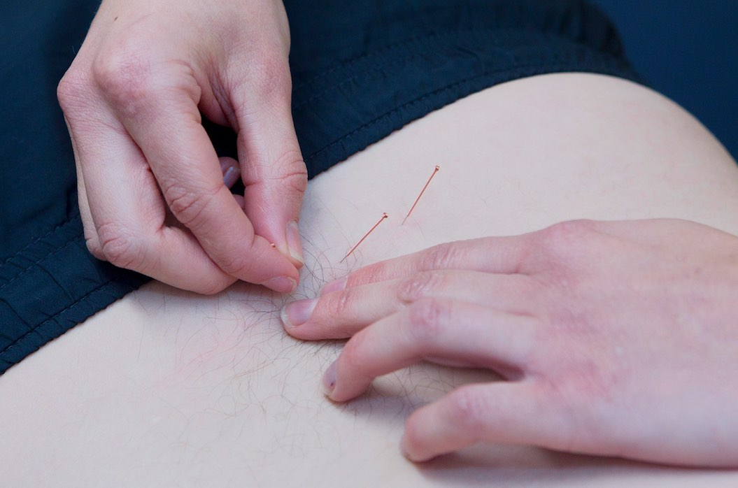acupuncture-neston