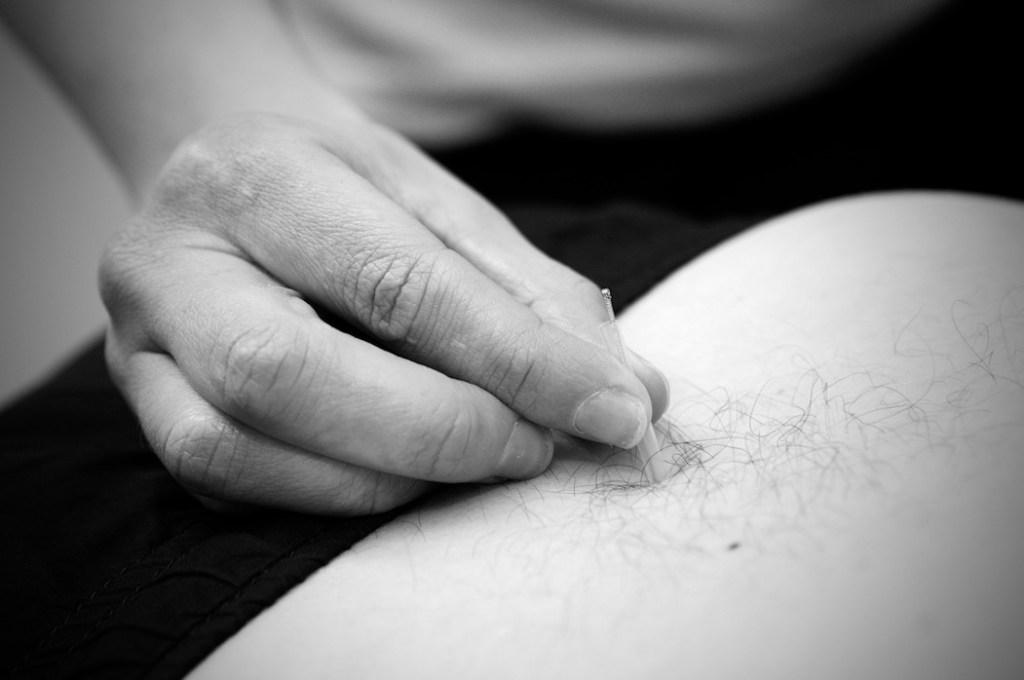acupuncture-physio-neston
