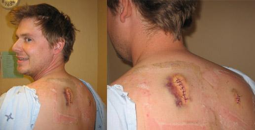 Tim Heidecker stabbed in the back.