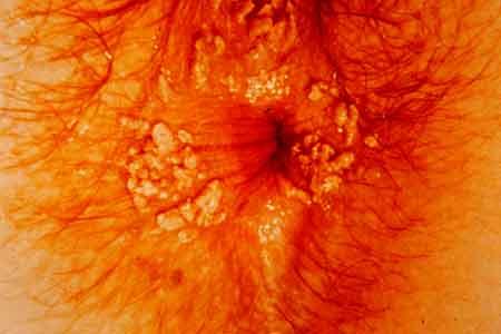 cancer sarcoma leg cum poți trata condilomul