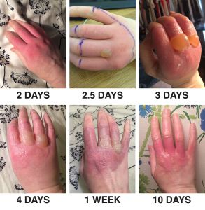 Henna And Phytophotodermatitis