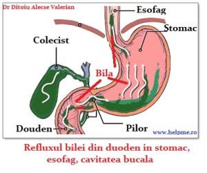 refluxul biliei in esofag