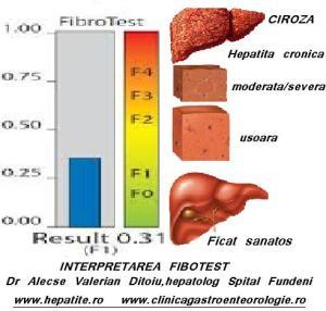 steatoza hepatica gradul 2 se poate vindeca)