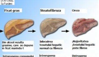 steatoza hepatica se vindeca)
