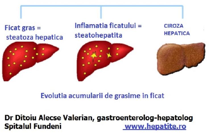 Dieta care inversează steatoza hepatică. Cum scapi de ficatul gras înainte de a ajunge la fibroză