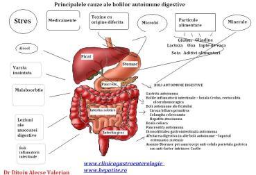 boli-digestive-autoimune