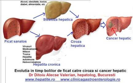 evolutia-hepatitei-cronice