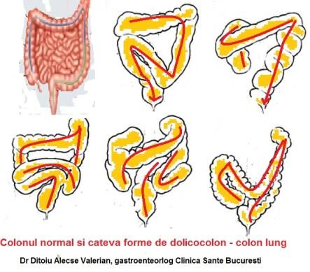 Colon lung, dolicocolon