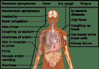 Infectia COVID 19
