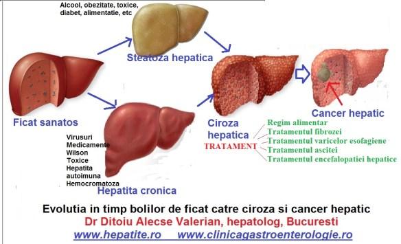 regim pentru ciroza hepatica