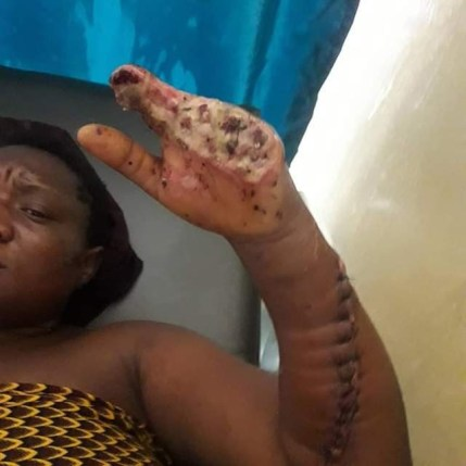 Election Violence: woman hacked by strangers survives first surgery (photos)