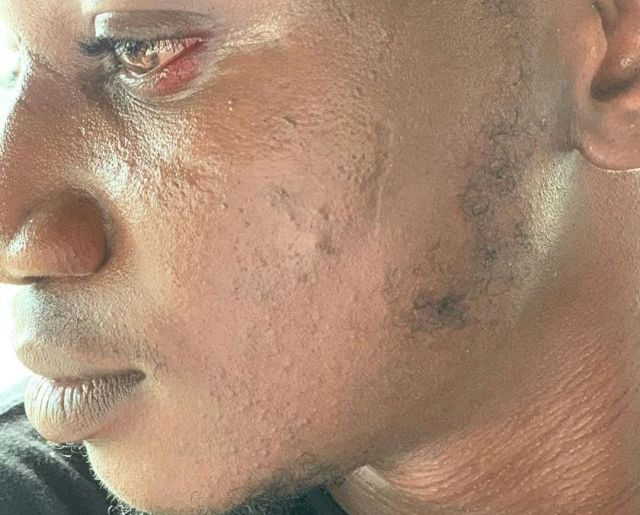 Pamilerin swollen face