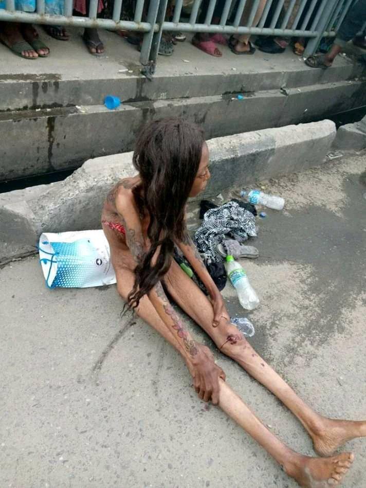 update-shocking-lagos-girl-shrinks-to-bones