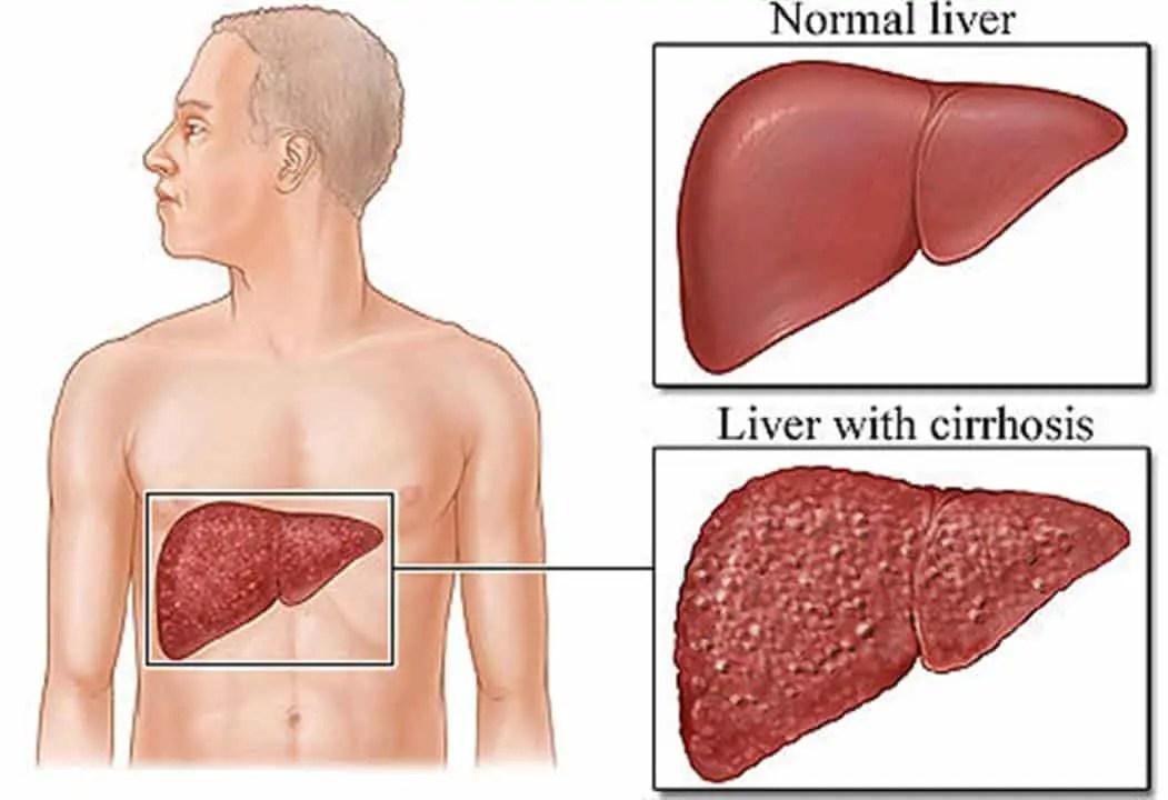 herbal remedies for cirrhosis