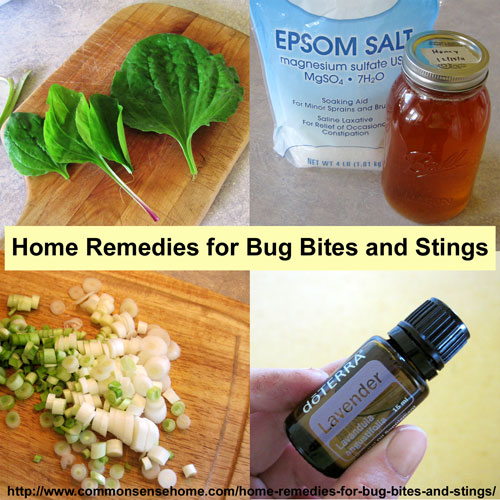 Best Remedy Insect Bites