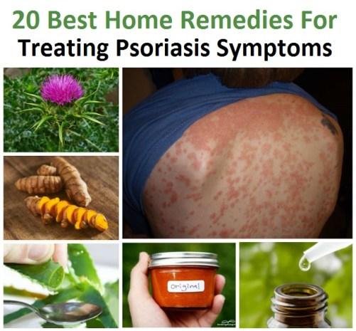 treat-psoriasis