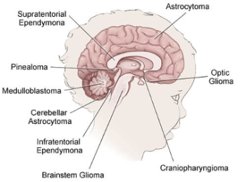 Various locations and types of pediatric brain cancers
