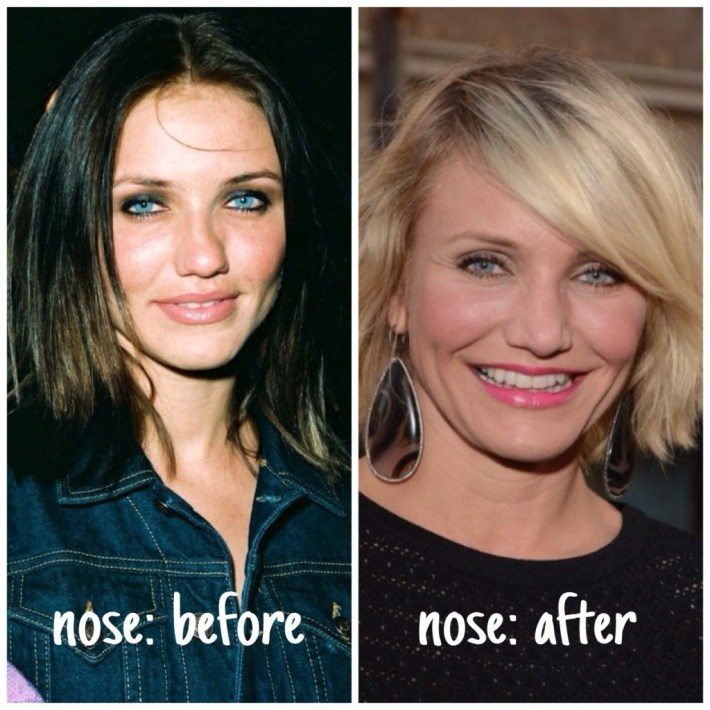 cameron diaz plastic surgery leaks! | herinterest/