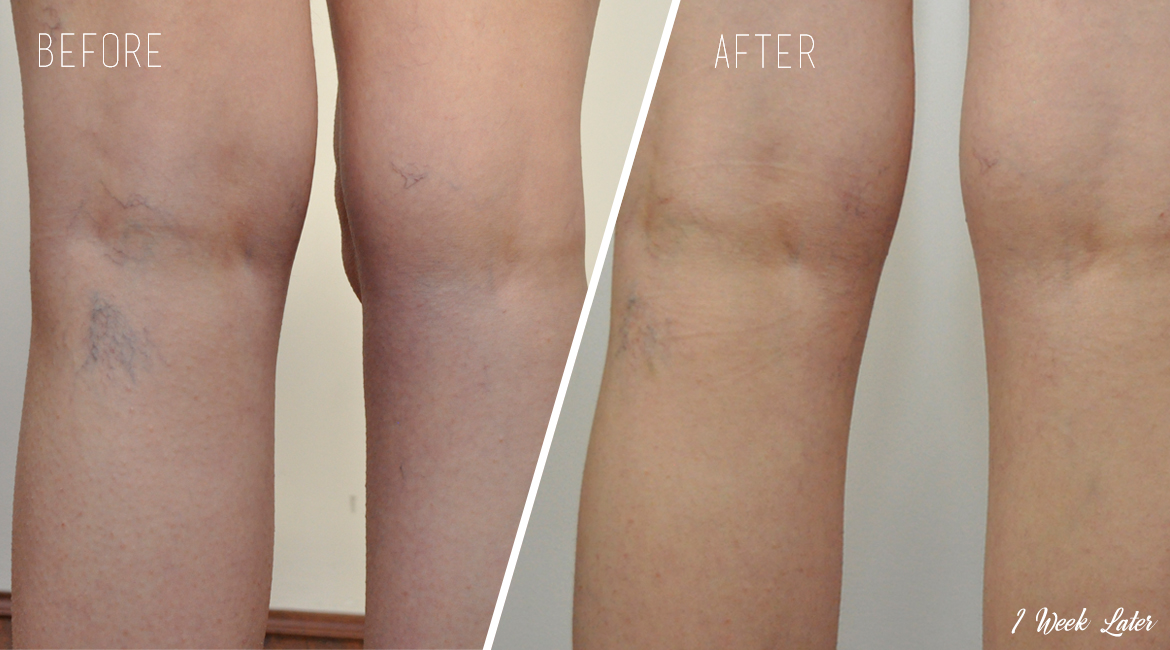 GentlePro vein capillary treatment