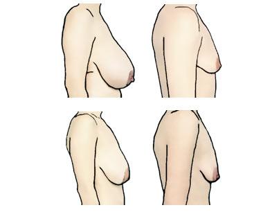 meth whore deflated tits