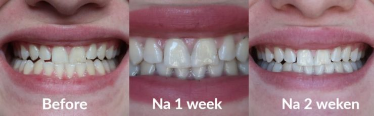 Resultaten tandenbleken-thuis.nl gel ativated charcoal bleekset