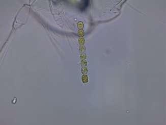 Skeletonema Phytoplankton