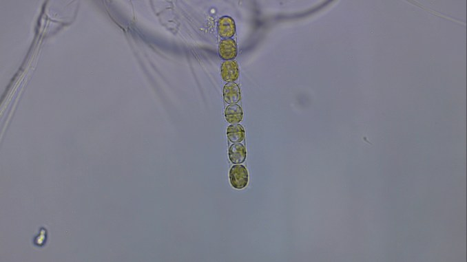 Skeletonema Phytoplankton