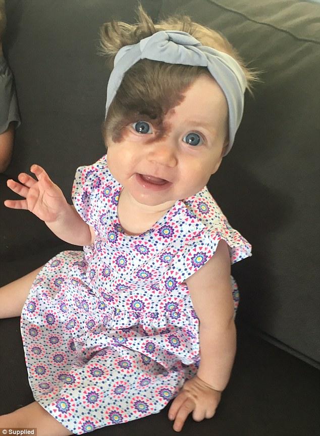 Meet Adorable Baby Born With Dark Birthmark She Will Need